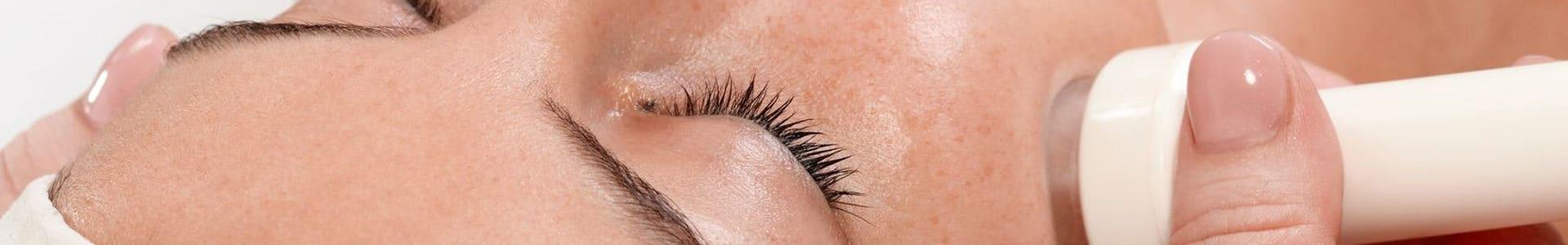 eBeautyLab - gabinet kosmetologiczny Gdańsk - Mezoterapia bezigłowa